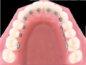 lingual_braces